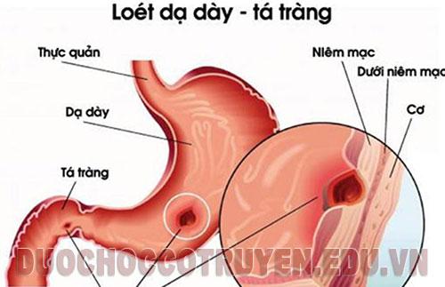 Dược học cổ truyền bài thuốc Đông Y trị viêm loét dạ dày tá tràng