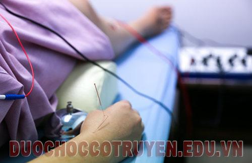 Bài châm cứu bấm huyệt chữa viêm khớp hiệu quả