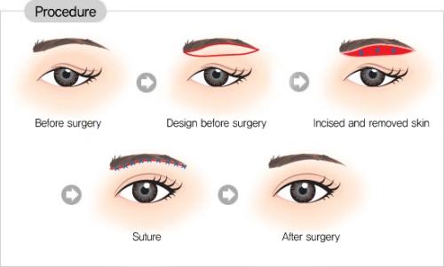 Chỉnh hình sụp mí bẩm sinh sẽ khôi phục lại đôi mắt bình thường cho bạn