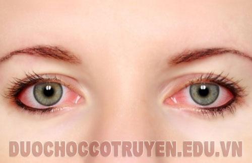 Bài thuốc Đông Y chữa đau mắt đỏ đơn giản, hiệu quả