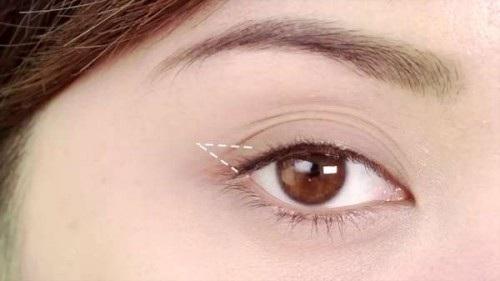 Hiện tượng mắt nhiều mí là hiện tượng không khó để bắt gặp