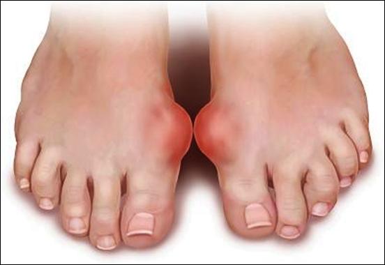 Bệnh gout nên điều trị bằng Y học cổ truyền?