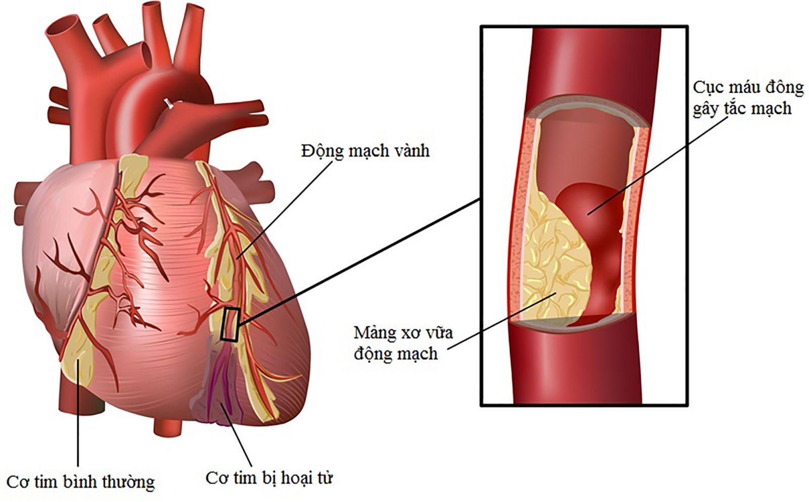 Thực đơn cho người bị bệnh mạch vành nên biết