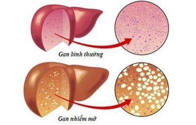 Gan nhiễm mỡ ngày càng phổ biến