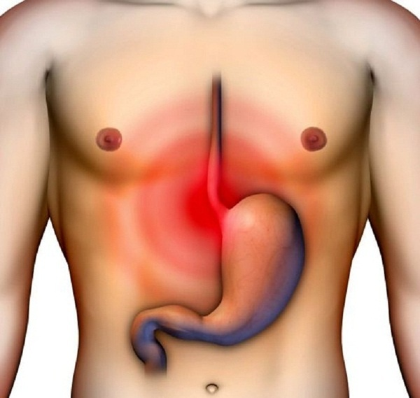 Cách chữa trào ngược dạ dày tại nhà hiệu quả