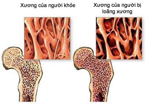 Bệnh loãng xương làm mỏng và mòn xương