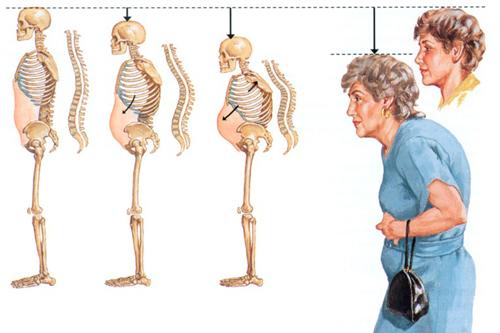 Bệnh loãng xương thường xuất hiện ở người cao tuổi và phụ nữ mãn kinh