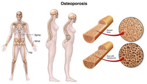 Những dấu hiệu cần phải biết về bệnh loãng xương