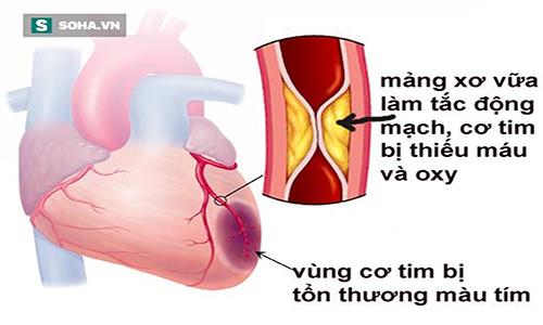 Bật mí bài thuốc dân gian chữa bệnh thiếu máu cơ tim