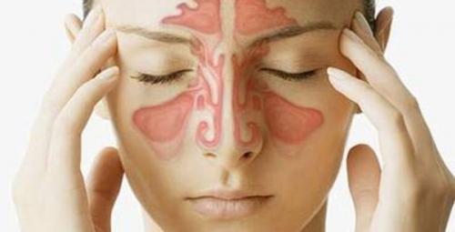 3 bài thuốc dân gian chữa bệnh viêm xoang hiệu quả từ lần đầu