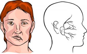 Hướng dẫn cách xoa bấm huyệt điều trị liệt thần kinh mặt trong Y dược
