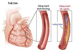 Bài thuốc điều trị giúp trị xơ vữa mạch vành rất hiệu quả
