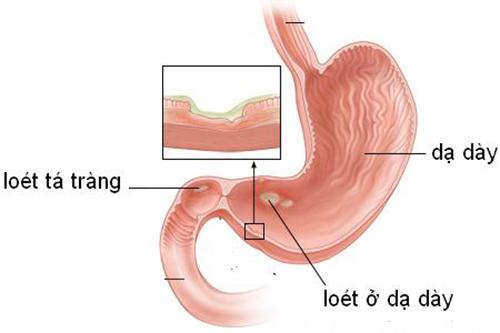 Những triệu chứng nhận biết bệnh viêm loét dạ dày tá tràng