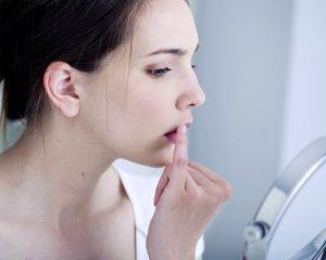 Bài thuốc điều trị nhiệt miệng bằng Y học cổ truyền